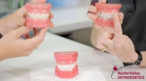 Hunter Valley Orthodontics - Dentist in Melbourne